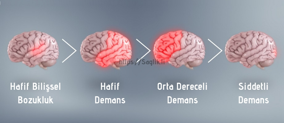 Alzheimer Hastalığı Evreleri Nelerdir? Alzheimer Nasıl İlerler? | SAĞLIK'lı