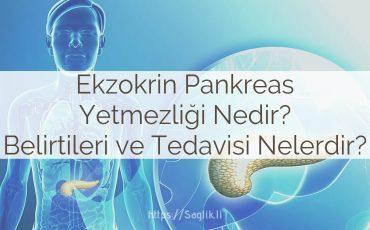Ekzokrin pankreas yetmezliğ nedir? ekzokrin pankreas nedenleri, teşhisi, belirtileri ve tedavisi nelerdir