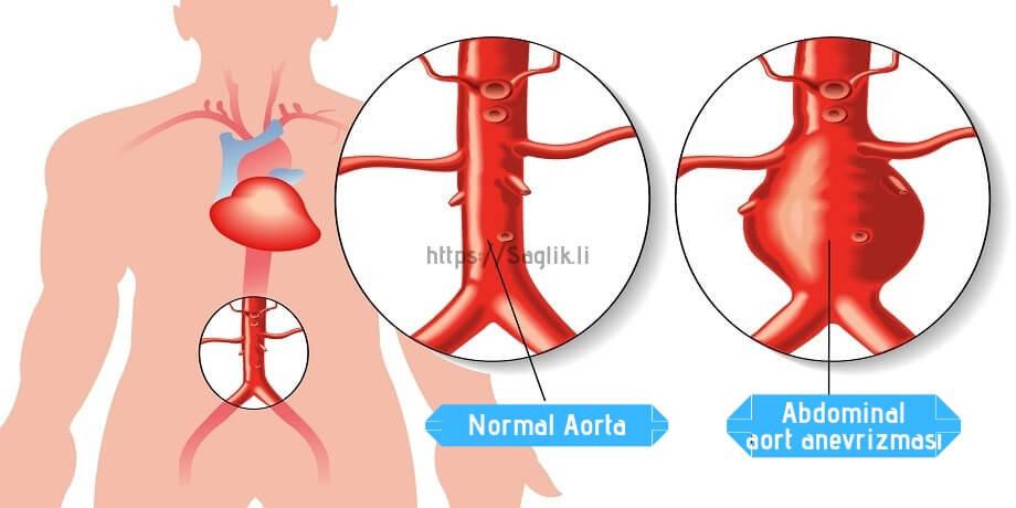 Abdominal Aort Anevrizması (AAA) - Saglik.li