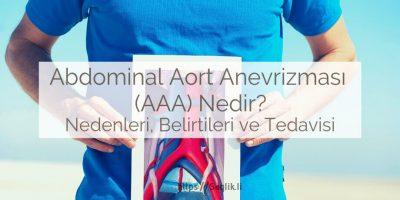 Abdominal aort anevrizması nedir? nedenleri ve belirtileri nelerdir, tedavisi nasıldır?