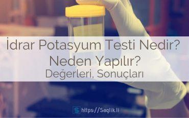 İdrar potasyum testi nedir? idrar potasyum testi neden yapılır? nasıl uygulanır? sonuçları ve değerleri
