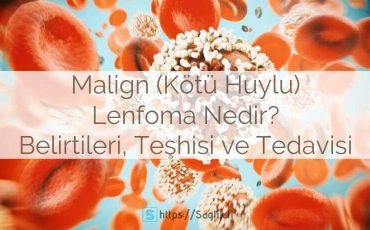 Malign lenfoma nedir? kötü huylu lenfoma belirtileri teşhisi ve tedavisi