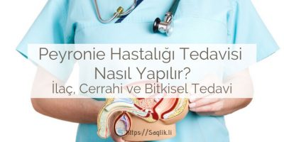 Peyronie hastalığı tedavisi nasıl yapılır? ilaç tedavisi, bitkisel tedavi, ameliyat ve cerrahi tedavi