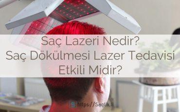 Saç lazeri nedir? Saç dökülmesi lazer tedavisi hasta yorumları