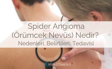 Spider Angioma nedir? Spider nevüs, nevi, örümcek damarları belirtileri nedenleri ve tedavisi