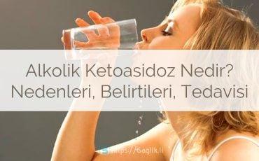 Alkolik ketoasidoz nedir? Alkol ketoasidoz nedenleri, belirtileri ve tedavisi?