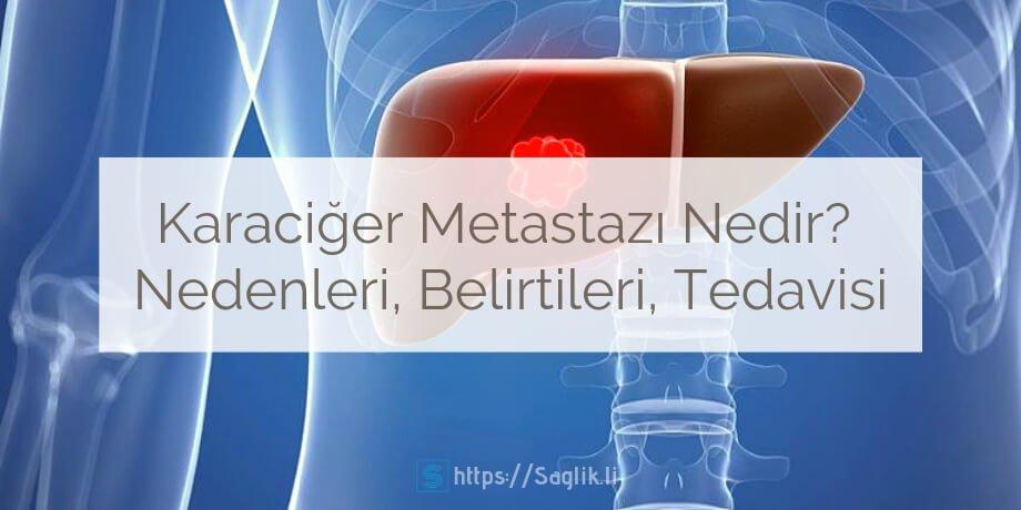 Karaciğer metastazı nedir? karaciğere metastaz yapan tümörler hangileridir? nedenleri belirtileri ve tedavisi