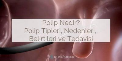 Polip Nedir? Polip tipleri nelerdir? Poliplerin nedenleri ve belirtileri nelerdir? Polip nasıl tedavi edilir?