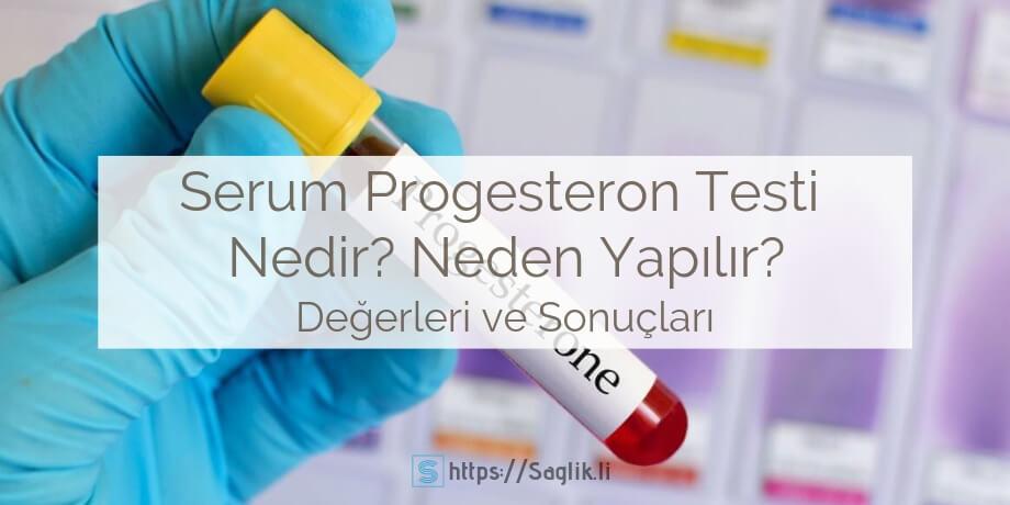 Serum progesteron testi nedir? neden uygulanır? progesteron hormonu eksikliği yüksekliği nedenleri