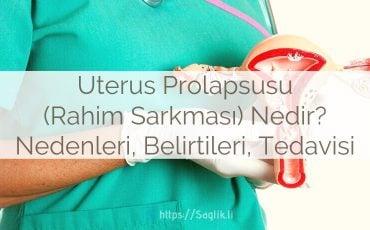 Uterus prolapsusu nedir? rahim sarkması nedir? nedenleri belirtileri ve tedavisi