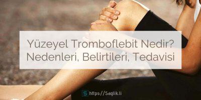 Yüzeyel tromboflebit nedir? Yüzeysel superficial tromboflebit nedenleri belirtileri ve tedavisi