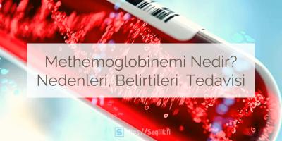 Methemoglobinemi nedir? Methemoglobinemi nedenleri, belirtileri nelerdir? Methemoglobinemi teşhisi ve tedavisi nasıl yapılır?