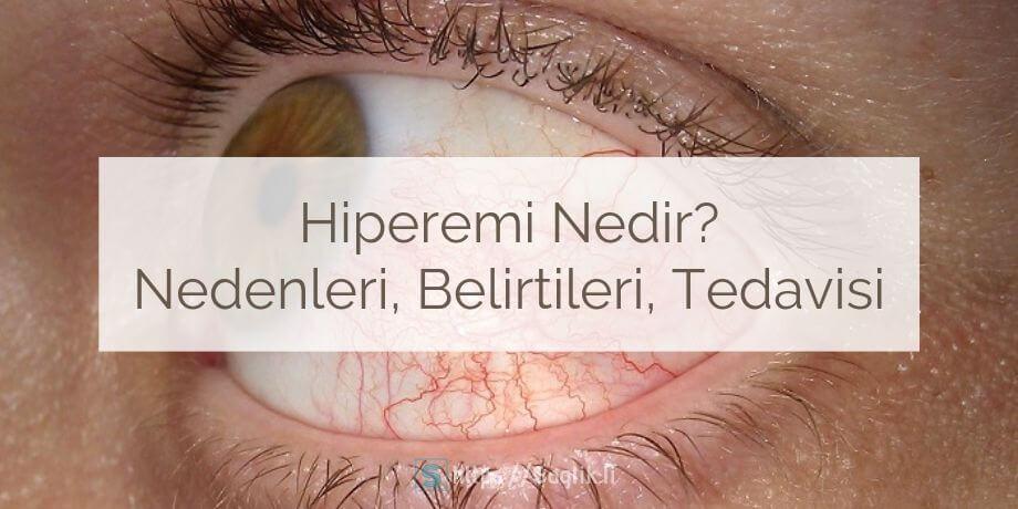 Hiperemi nedir? Hiperemi nedenleri ve belirtileri nelerdir? Hipereminin teşhisi ve tedavisi nasıl yapılır?