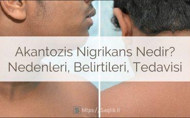 Akantozis Nigrikans Nedir? Nedenleri, Belirtiler ve Tedavisi