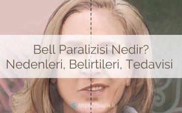 Bell paralizisi nedir? Bell paralizisi nedenleri, belirtileri, teşhisi,tedavisi ve iyileşme süreci.