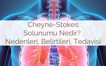 Cheyne-Stokes Solunumu Nedir? Nedenleri, Belirtileri, Tedavisi