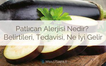 Patlıcan Alerjisi Nedir? Belirtileri, Tedavisi, Ne İyi Gelir