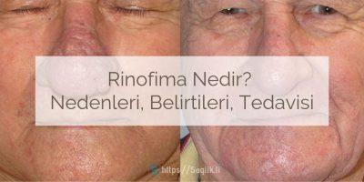 Rinofima Nedir? Nedenleri, Belirtileri, Teşhisi ve Tedavisi