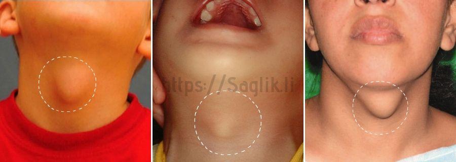 Tiroglossal kanal kisti (tiroglossal kist) örnekleri - Saglik.li