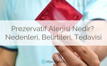 Prezervatif Alerjisi Nedir? Nedenleri, Belirtileri ve Tedavisi