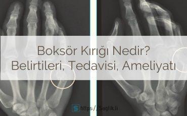 Boksör kırığı nedir? Boksör kırığı tedavisi nasıl yapılır? Boksör kırığı ateli ve boksör kırığı ameliyatı