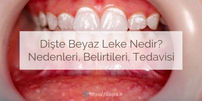 Dişte Beyaz Leke Nedir? Nedenleri, Belirtileri ve Tedavisi, Dişte beyaz lekeler nasıl geçer