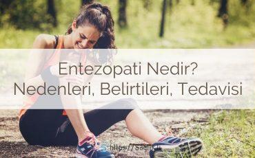 Entezopati nedir? Entesopati nedenleri nelerdir? Entezis belirtileri nelerdir? Entezopati tedavisi nasıl yapılır? Entezit hakkında her şey.