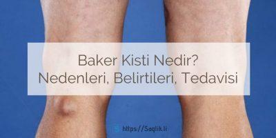 Baker kisti nedir? Popliteal kist nedir? Baker kisti neden olur, nedenleri, belirtileri, baker kisti tedavisi, ameliyatı