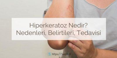 Hiperkeratoz nedir? Hiperkeratoz nedenleri nelerdir? Hiperkeratoz tedavisi nasıl yapılır?