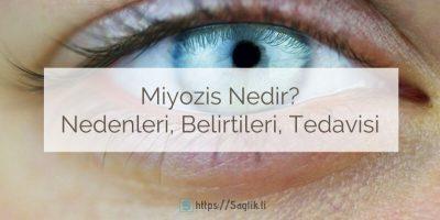 Miyozis nedir? Miyozis nedenleri, miyozis yapan ilaçlar, belirtileri ve miyotik göz tedavisi