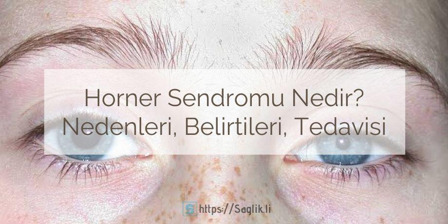 Horner sendromu nedir, horner sendromu nedenleri, belirtileri, tedavisi