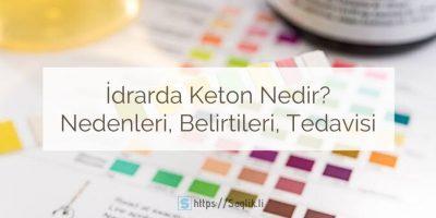 İdrarda keton nedir? İdrarda keton pozitif / negatif / eser miktarda ne demek? Ketonüri nedenleri nelerdir?