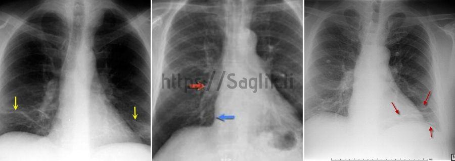 Atelektazi grafileri, röntgen örnekleri - Saglik.li