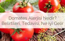 Domates alerjisi nedir? Domates alerjisi neden olur? Nedenleri ve belirtileri nelerdir? Domates alerjisi tedavisi nasıl yapılır?