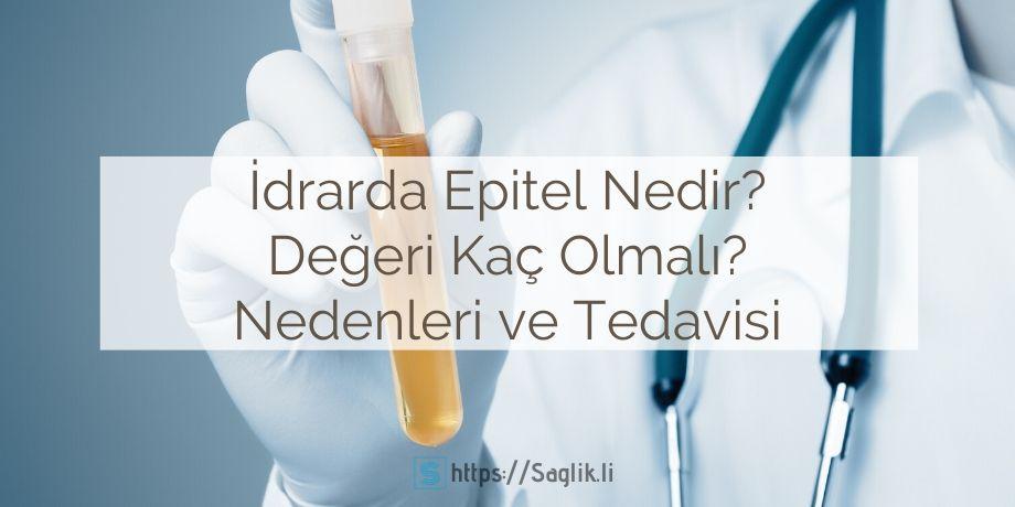 İdrarda epitel nedir? İdrarda epitel hücresi görülmesi, yassı epitel nedir, idrarda epitel normal değerleri