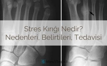 Stres kırığı nedir? Stres kırığı nedenleri, belirtileri, tedavisi, iyileşme süresi ve süreci, egzersizleri