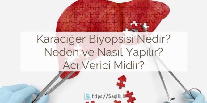 Karaciğer biyopsisi nedir? Neden yapilir? Karaciğer biyopsisi nasıl yapılır? Acı verici midir? Tehlikeli mi?