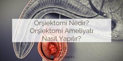 Orşiektomi nedir? Orşiektomi ameliyatı nasıl yapılır? Sonrası, komplikasyonları, cinsellik