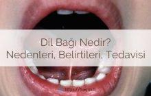 Dil bağı nedir? Ankiloglossia nedir? Dil bağı nedenleri, belirtileri, dil bağı tedavisi ve ameliyatı