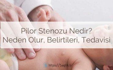 Pilor stenozu nedir? Pilor darlığı neden olur? Pilor stenozu tedavisi, ameliyatı, cerrahisi, nedenleri