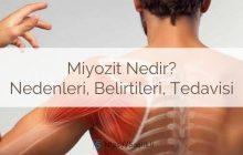 Miyozit nedir? Miyozit tipleri, nedenleri, teşhisi. Miyozit tedavisi nasıl yapılır? Bitkisel tedavi, viral miyozit