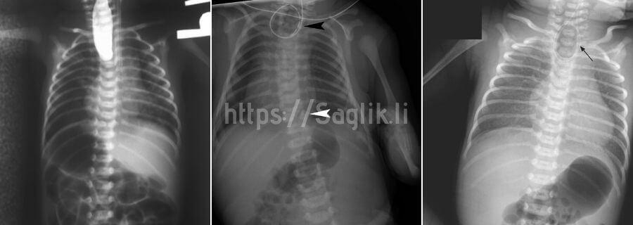 Özofagus atrezisi röntgen örnekleri - Saglik.li
