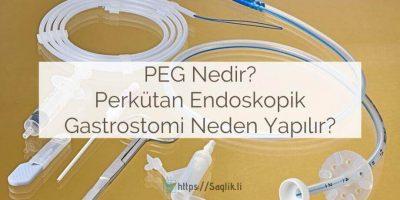 PEG nedir? Perkütan endoskopik gastrostomi nedir? Nasıl takılır, bakımı, besleme